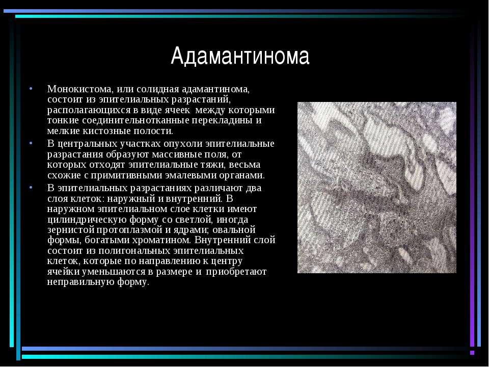 Адамантинома Монокистома, или солидная адамантинома, состоит из эпителиальных...