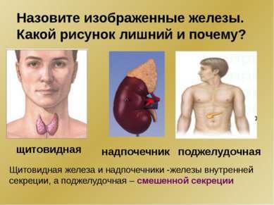 Назовите изображенные железы. Какой рисунок лишний и почему? щитовидная надпо...