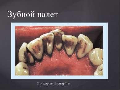 Зубной налет Прохорова Екатерина {
