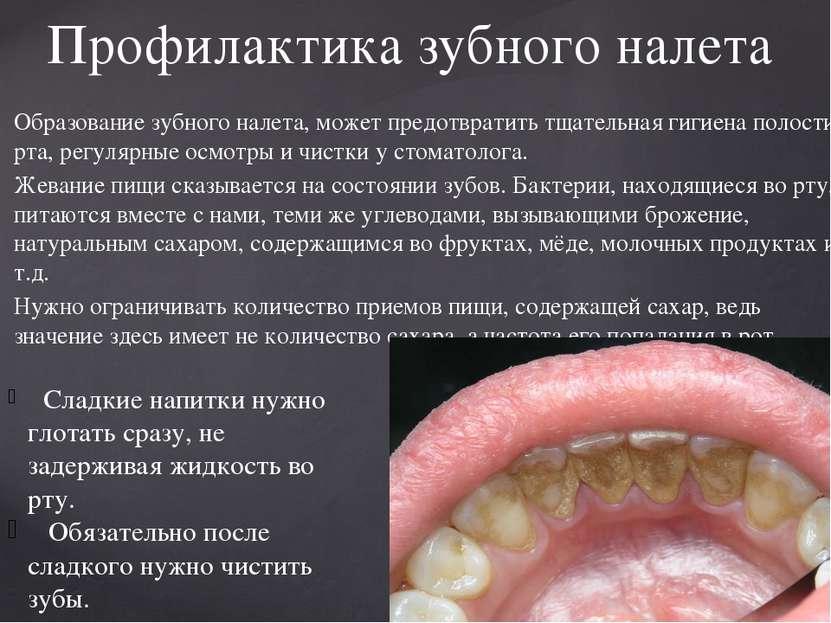 Образование зубного налета, может предотвратить тщательная гигиена полости рт...