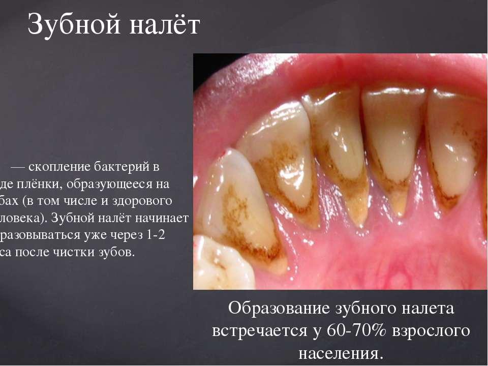 — скопление бактерий в виде плёнки, образующееся на зубах (в том числе и здор...