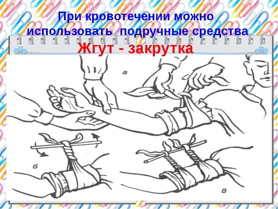 При кровотечении можно использовать подручные средства Жгут - закрутка