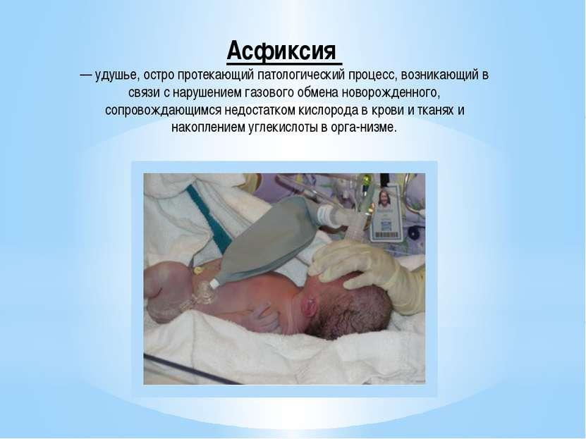 Асфиксия — удушье, остро протекающий патологический процесс, возникающий в св...