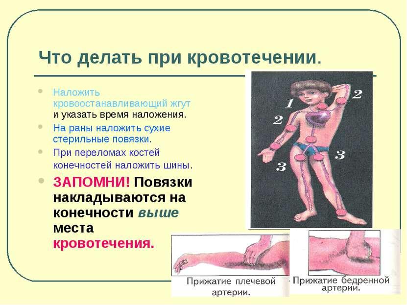 Что делать при кровотечении. Наложить кровоостанавливающий жгут и указать вре...