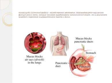 Муковисцидоз (кистозный фиброз) - наследственное заболевание, сопровождающеес...