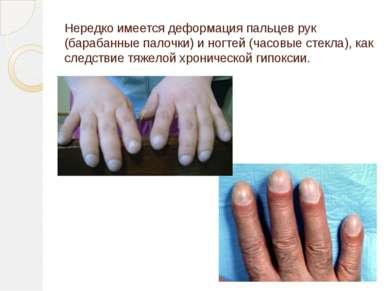 Нередко имеется деформация пальцев рук (барабанные палочки) и ногтей (часовые...