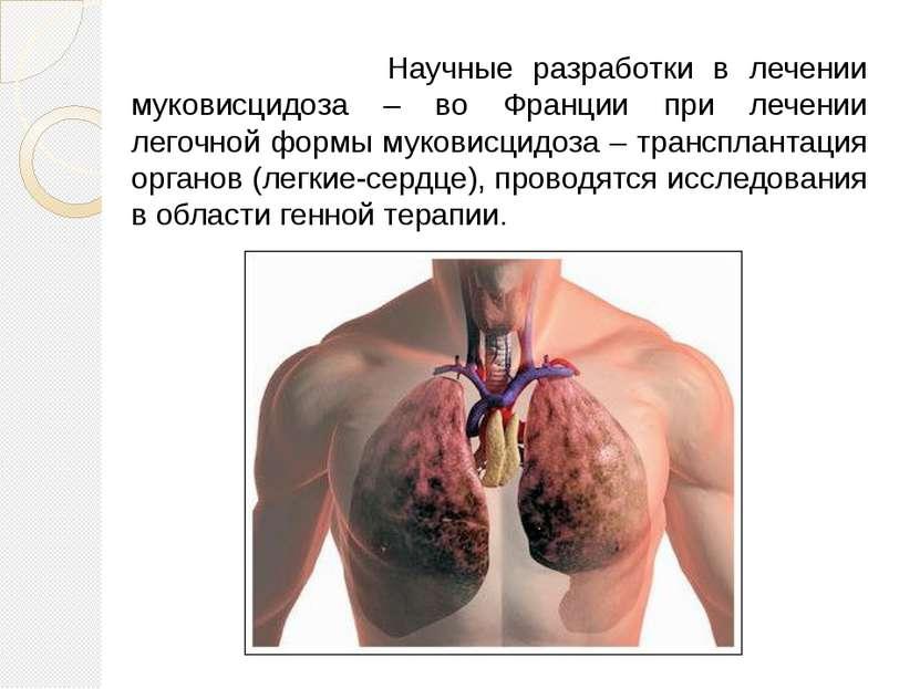 Научные разработки в лечении муковисцидоза – во Франции при лечении легочной ...