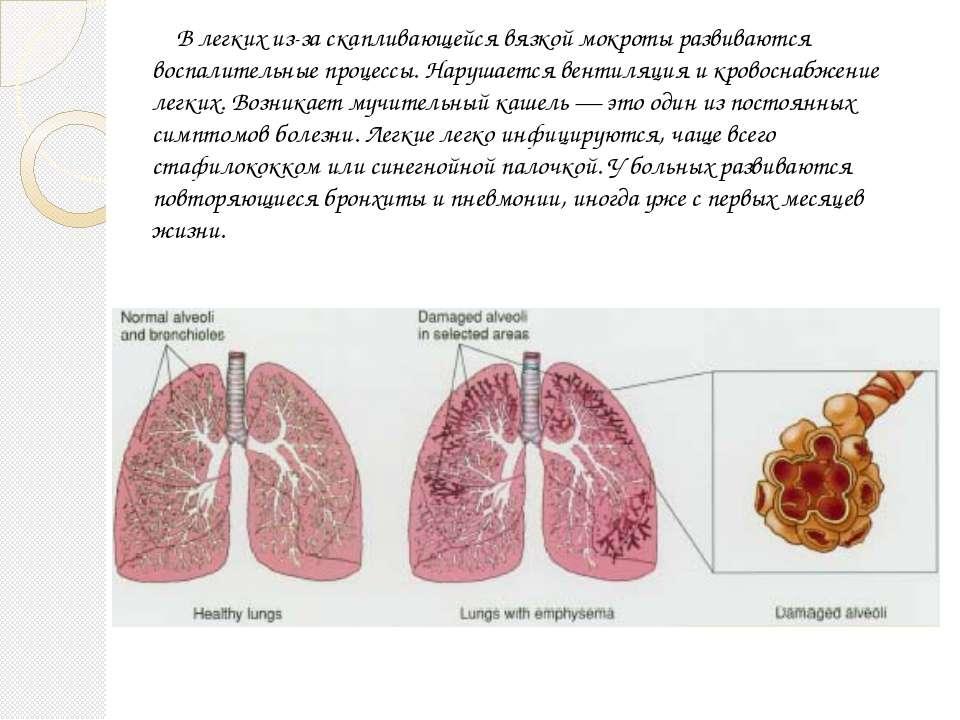 Влегкихиз-заскапливающейся вязкой мокроты развиваются воспалительные проце...