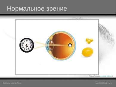 Нормальное зрение (Клиника Эксимер www.excimerclinic.ru) Органы чувств: Глаз ...