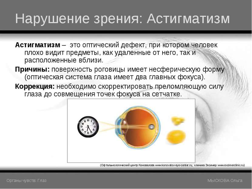 Нарушение зрения: Астигматизм Астигматизм – это оптический дефект, при которо...