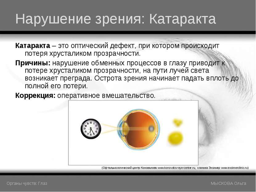 Нарушение зрения: Катаракта Катаракта – это оптический дефект, при котором пр...