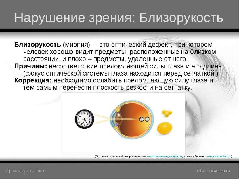Нарушение зрения: Близорукость Близорукость (миопия) – это оптический дефект,...