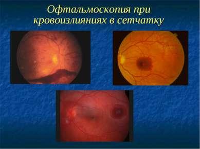 Офтальмоскопия при кровоизлияниях в сетчатку