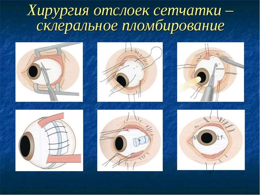 Хирургия отслоек сетчатки – склеральное пломбирование