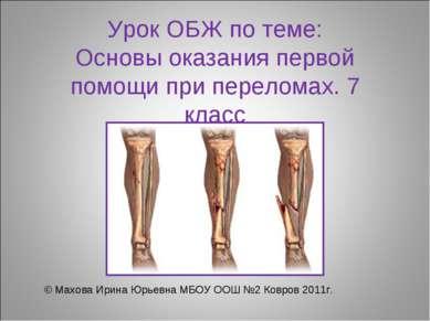 Урок ОБЖ по теме: Основы оказания первой помощи при переломах. 7 класс © Махо...
