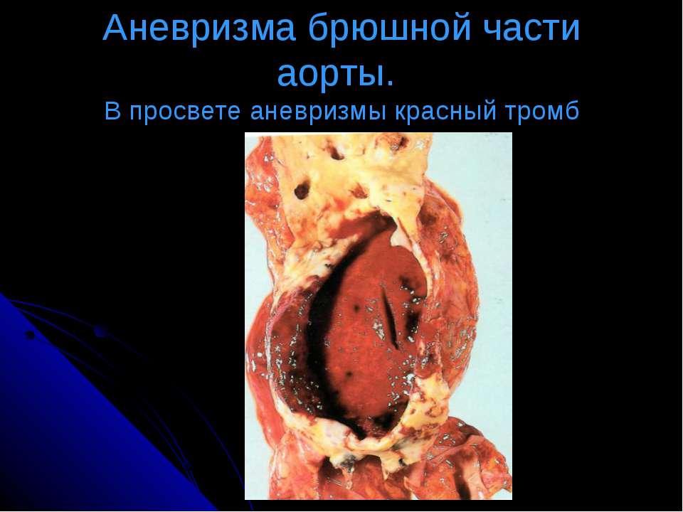 Аневризма брюшной части аорты. В просвете аневризмы красный тромб