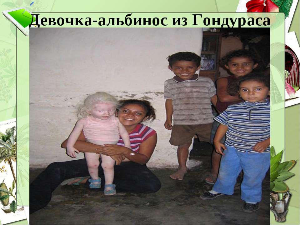 Девочка-альбинос из Гондураса