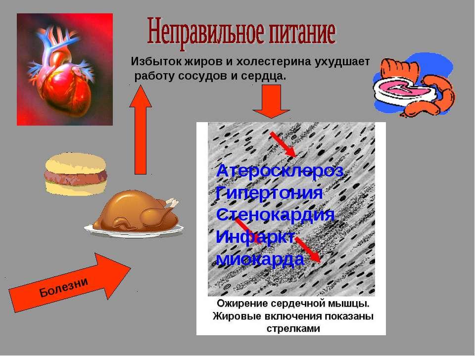 Избыток жиров и холестерина ухудшает работу сосудов и сердца. Атеросклероз Ги...