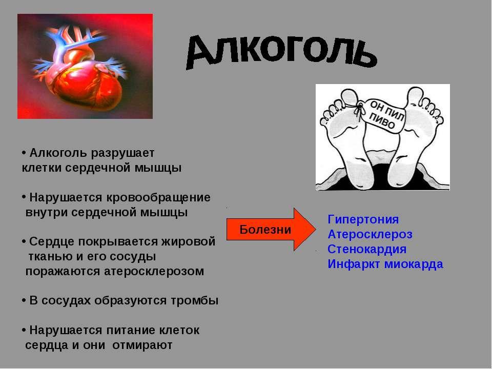 Алкоголь разрушает клетки сердечной мышцы Нарушается кровообращение внутри се...