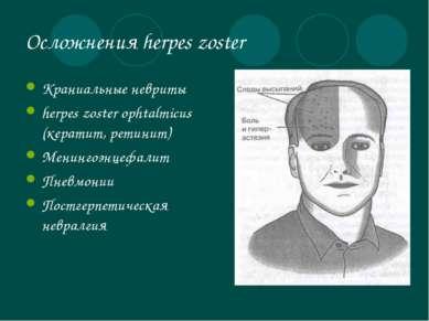 Осложнения herpes zoster Краниальные невриты herpes zoster ophtalmicus (керат...