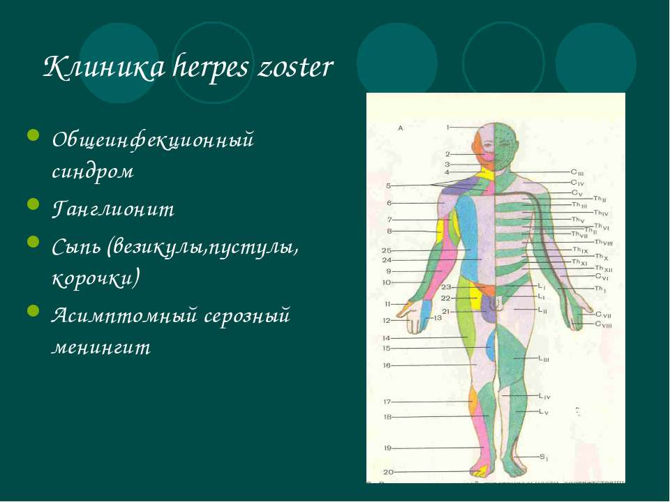 Клиника herpes zoster Общеинфекционный синдром Ганглионит Сыпь (везикулы,пуст...