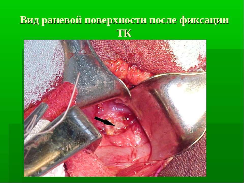 Вид раневой поверхности после фиксации ТК