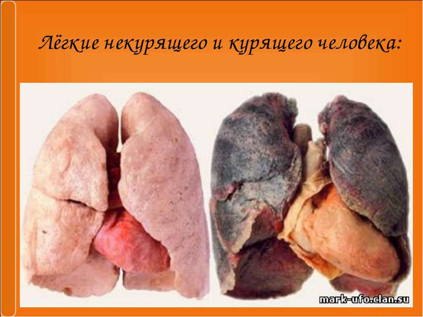 Лёгкие некурящего и курящего человека: