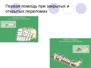 Первая помощь при закрытых и открытых переломах