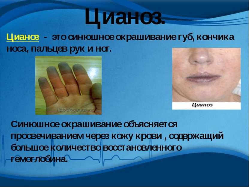 Цианоз. Цианоз - это синюшное окрашивание губ, кончика носа, пальцев рук и но...