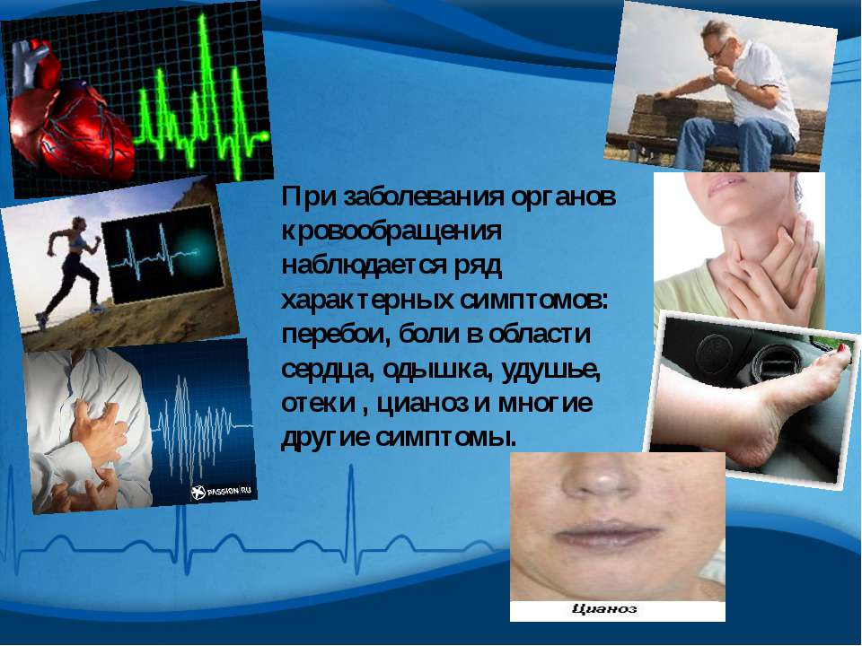 При заболевания органов кровообращения наблюдается ряд характерных симптомов:...