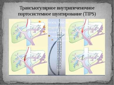 Трансъюгулярное внутрипеченочное портосистемное шунтирование (TIPS)