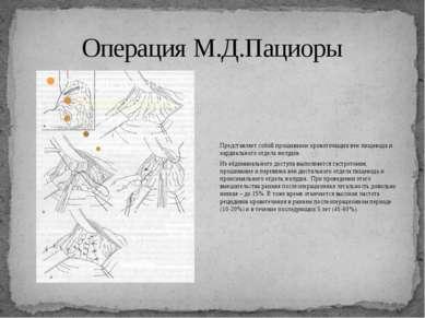 Операция М.Д.Пациоры Представляет собой прошивание кровоточащих вен пищевода ...