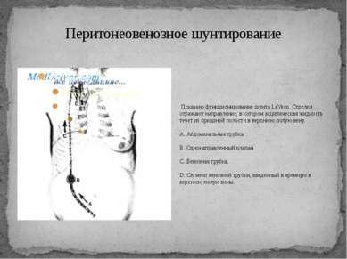Перитонеовенозное шунтирование Показано функционирование шунта LeVeen. Стрелк...