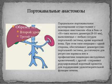 Портокавальные анастомозы Парциальное портокавалъное шунтирование осуществляю...