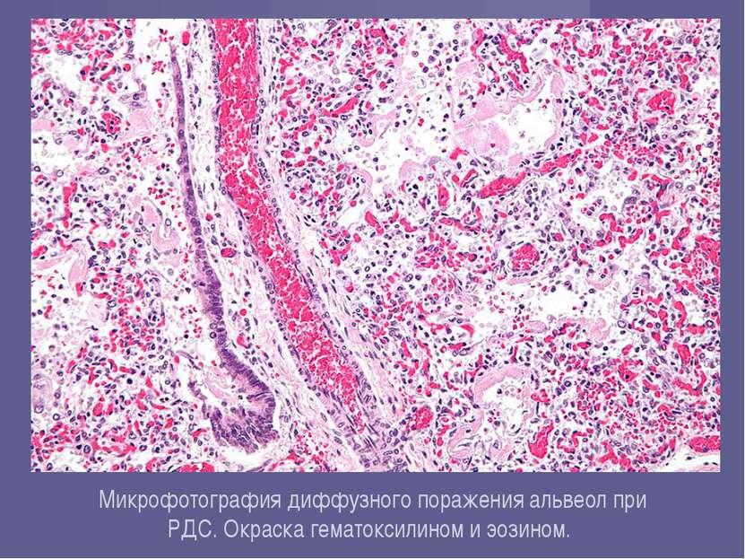 Микрофотографиядиффузного поражения альвеол при РДС.Окраска гематоксилином ...