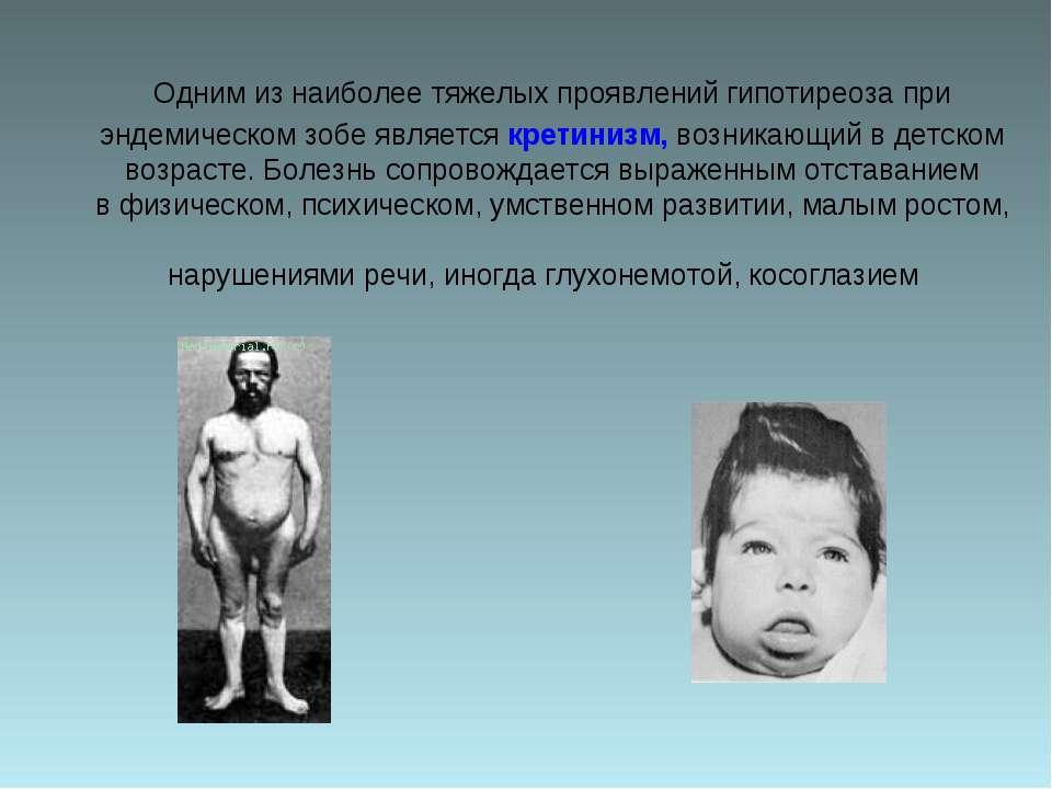 Одним изнаиболее тяжелых проявлений гипотиреоза при эндемическом зобе являет...