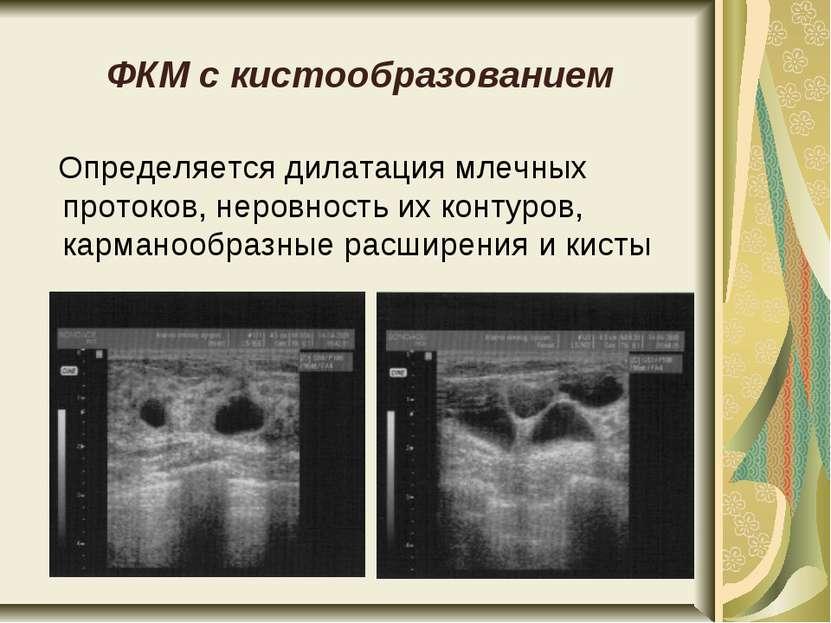 ФКМ с кистообразованием Определяется дилатация млечных протоков, неровность и...