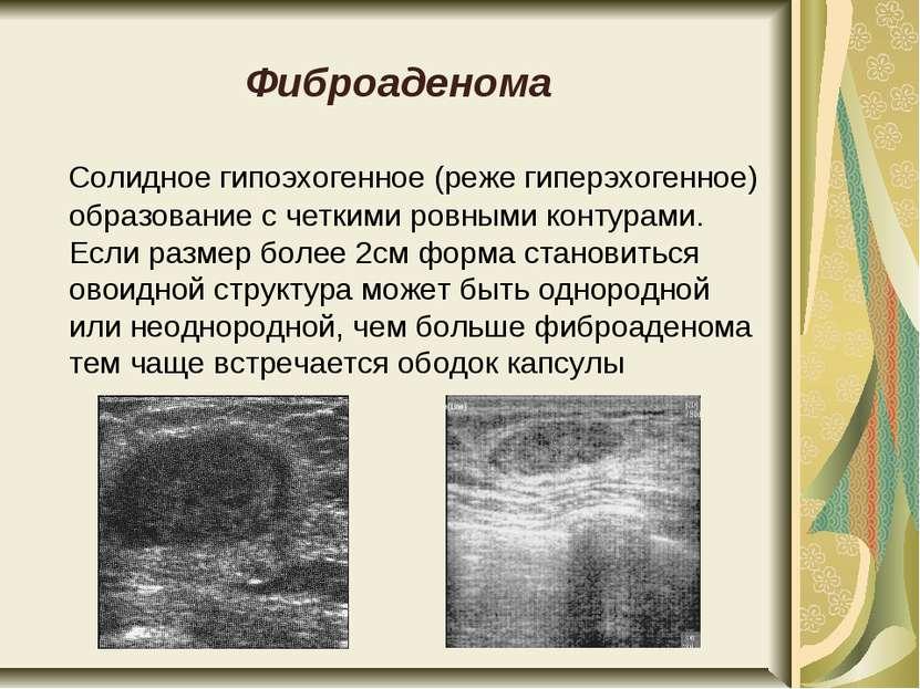Фиброаденома Солидное гипоэхогенное (реже гиперэхогенное) образование с четки...