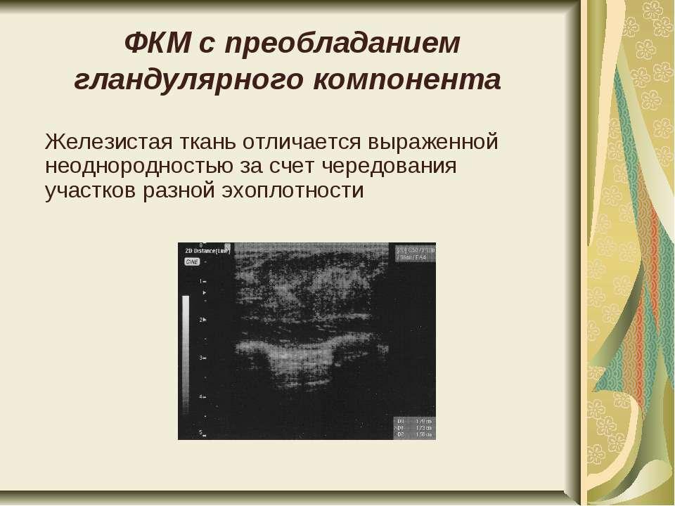 ФКМ с преобладанием гландулярного компонента Железистая ткань отличается выра...