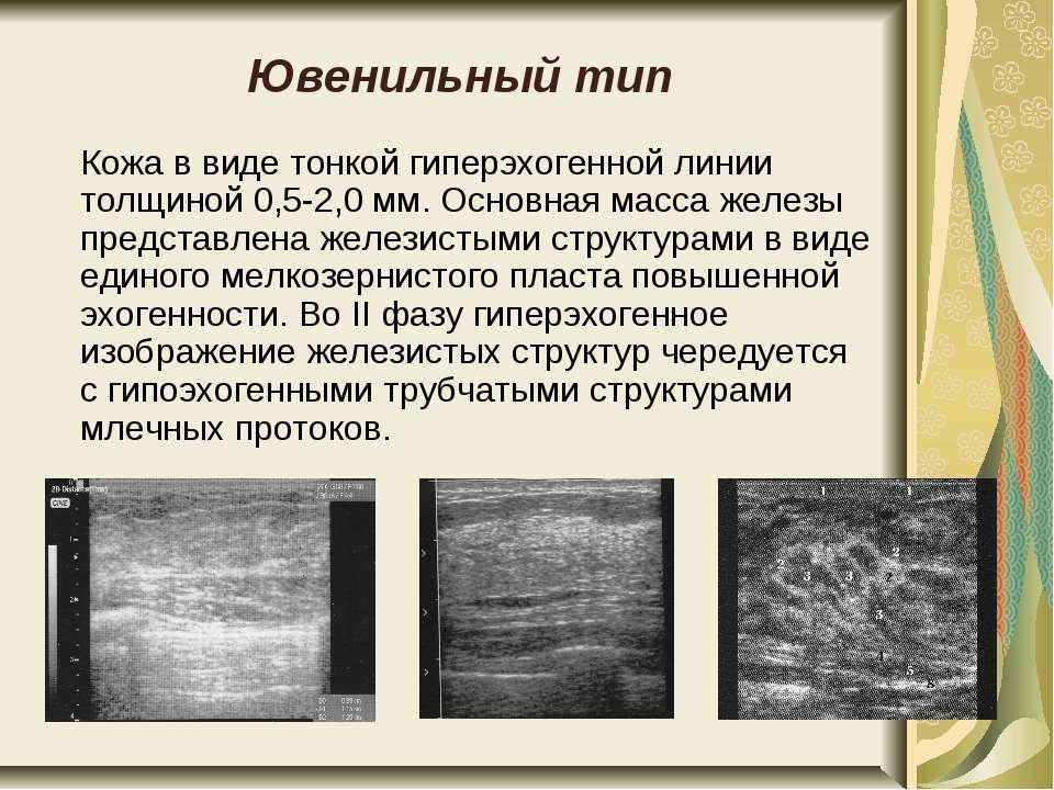 Ювенильный тип Кожа в виде тонкой гиперэхогенной линии толщиной 0,5-2,0 мм. О...