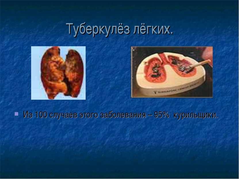 Туберкулёз лёгких. Из 100 случаев этого заболевания – 95% курильщики.