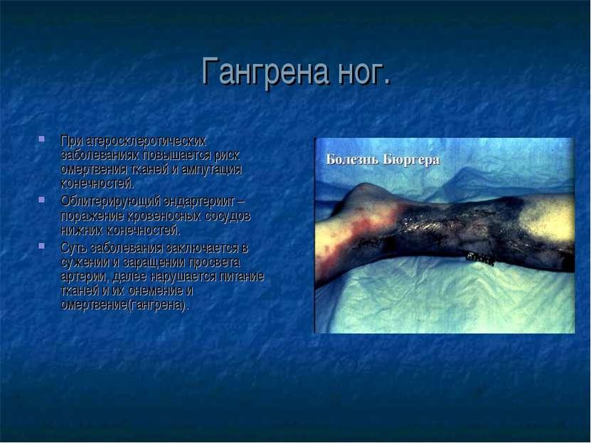 Гангрена ног. При атеросклеротических заболеваниях повышается риск омертвения...