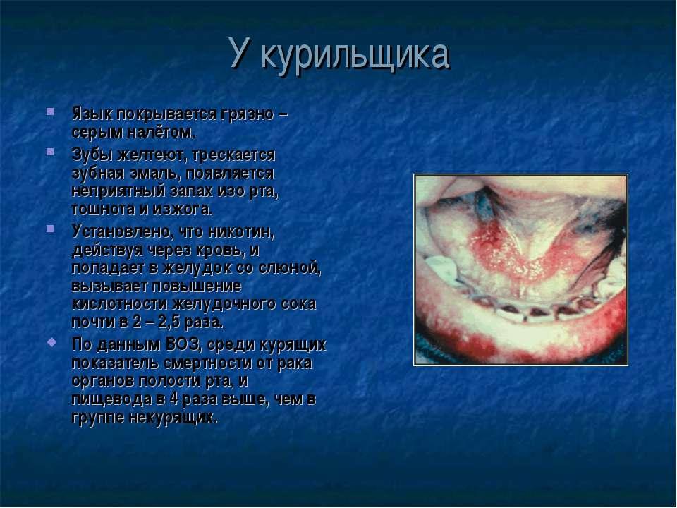 У курильщика Язык покрывается грязно – серым налётом. Зубы желтеют, трескаетс...