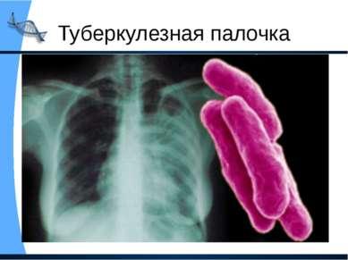 Туберкулезная палочка