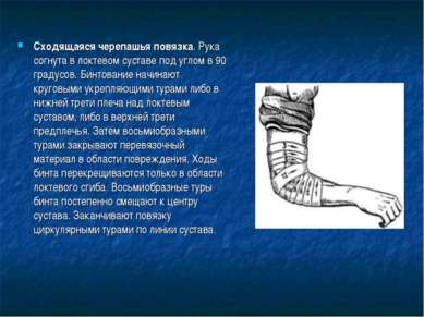 Сходящаяся черепашья повязка. Рука согнута в локтевом суставе под углом в 90 ...