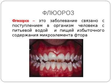 ФЛЮОРОЗ Флюороз – это заболевание связано с поступлением в организм человека ...