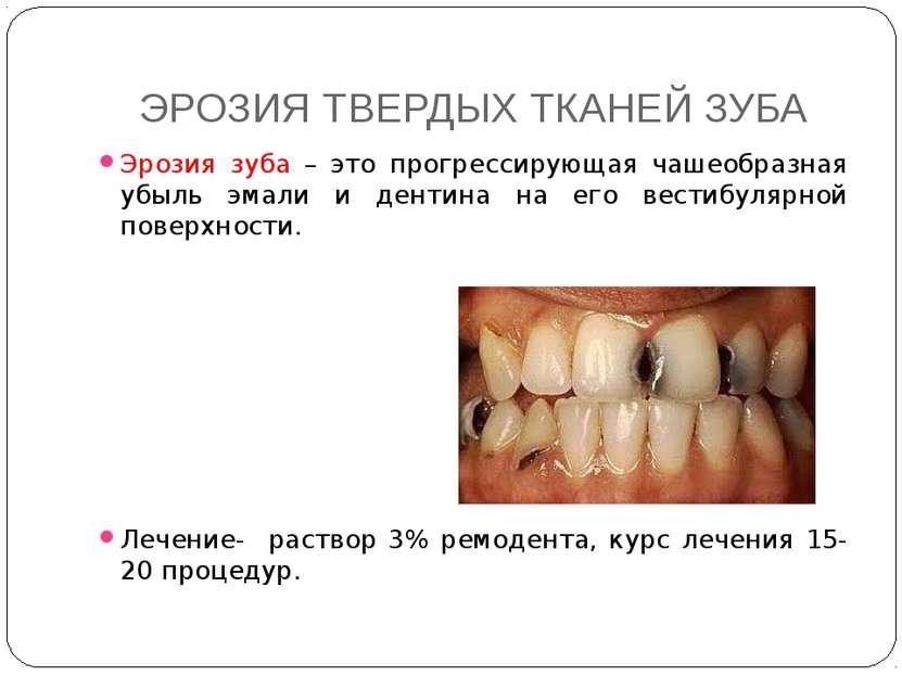 ЭРОЗИЯ ТВЕРДЫХ ТКАНЕЙ ЗУБА Эрозия зуба – это прогрессирующая чашеобразная убы...
