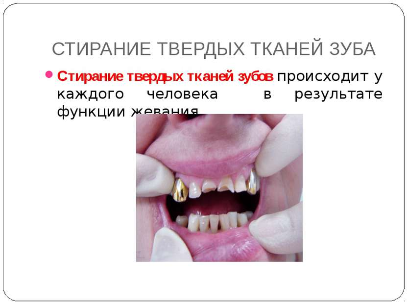СТИРАНИЕ ТВЕРДЫХ ТКАНЕЙ ЗУБА Стирание твердых тканей зубов происходит у каждо...