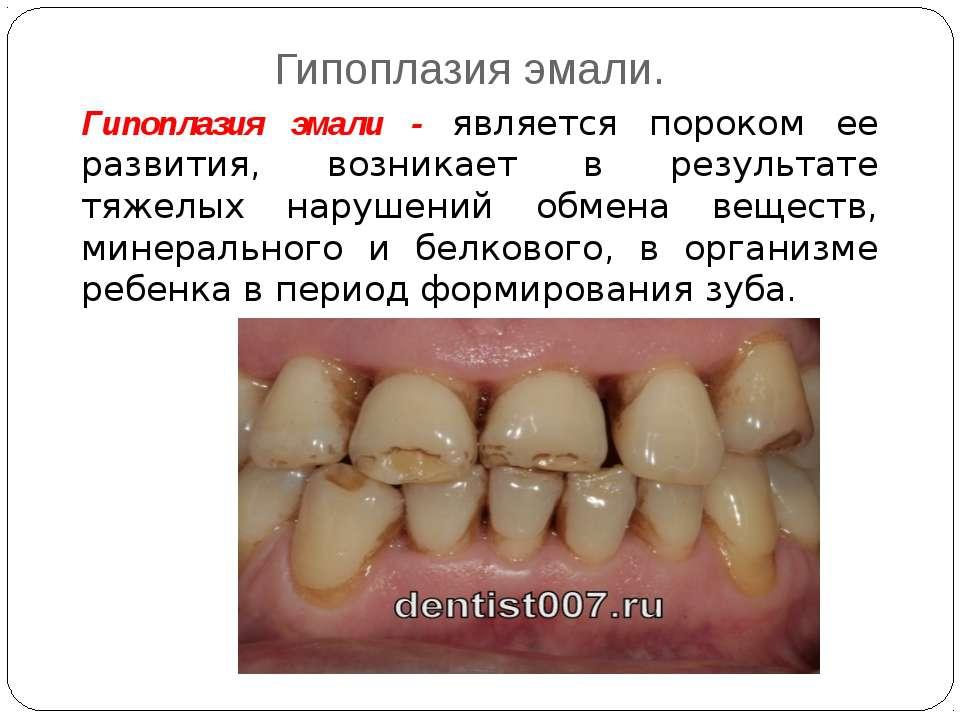 Гипоплазия эмали. Гипоплазия эмали - является пороком ее развития, возникает ...