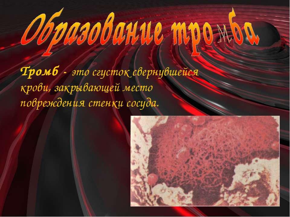 Тромб - это сгусток свернувшейся крови, закрывающей место повреждения стенки ...